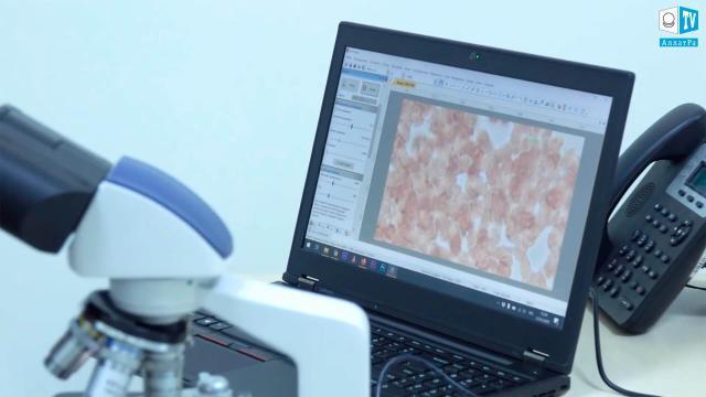 01.Анализ крови под микроскопом