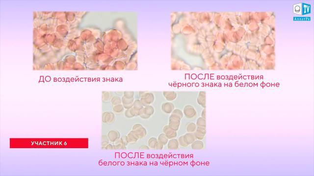 18.Эксперимент 2 Участник 6 Воздействие знака АллатРа на кровь