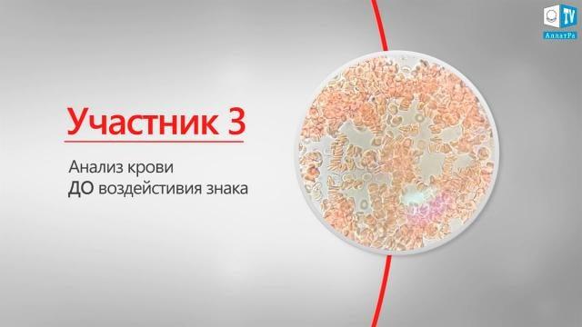 08.Участник 3 Анализ крови ДО воздействия знака АллатРа
